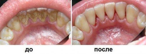 Профессиональный уход за зубами