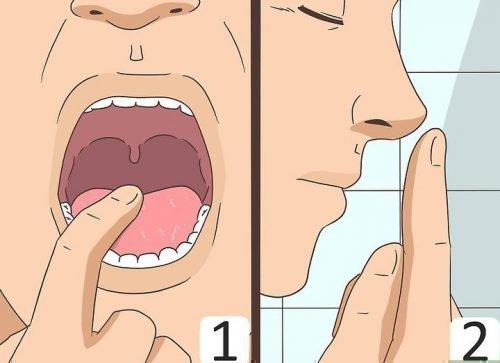Проверить налет с языка соскобом