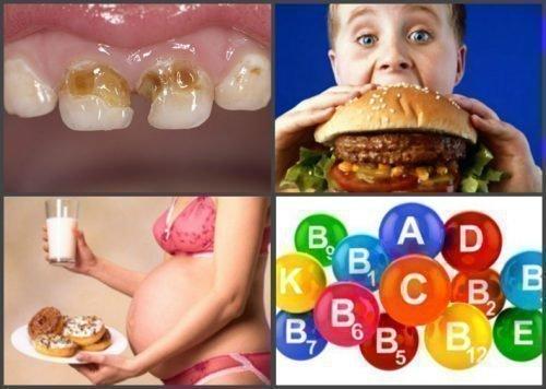 Неправильное питание против зубов