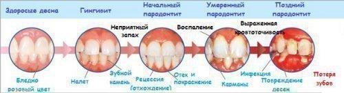 Этапы развития пародонтоза