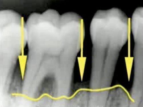Рентген снимок - диагностика пародонтоза