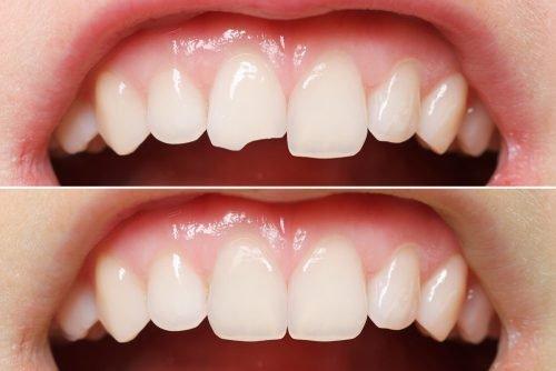 Реставрация зубного скола