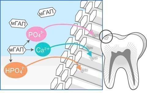 Схема имплантации эмали