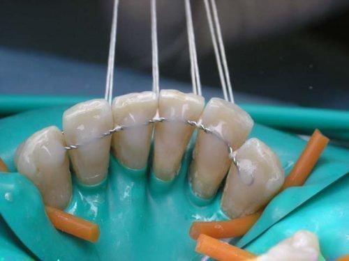 Шинирование зубов при пародонтозе