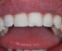 Скол эмали спереди зуба