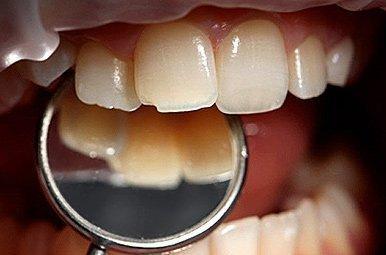Скол зубной эмали на переднем зубе
