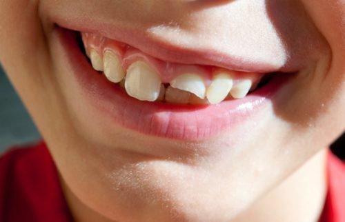 Скол на зубе с захватом пульпы
