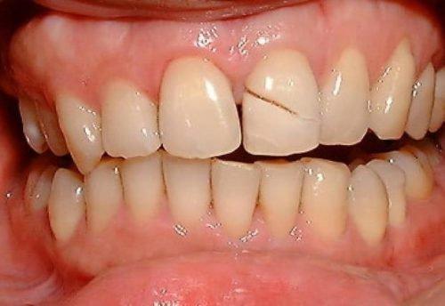 Скол на зубе с трещиной