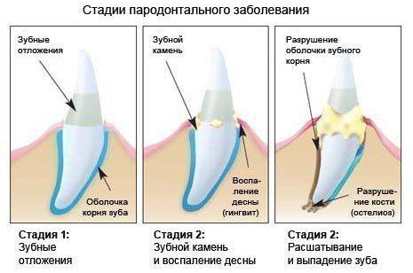 Три стадии пародонтоза
