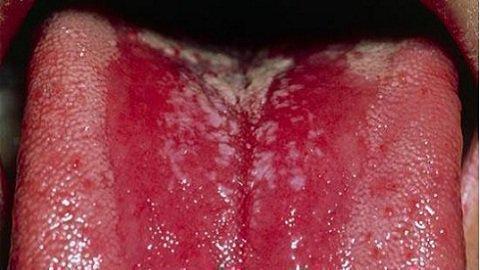 Причина плохого запаха - стоматит на языке