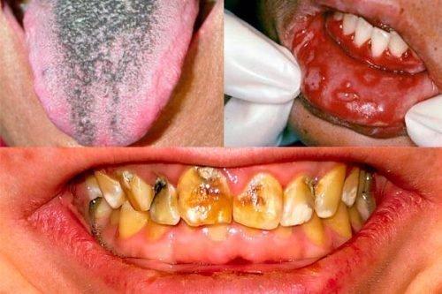 Стоматологические причины халитоза