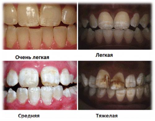 Стадии дисплазии эмали зубов