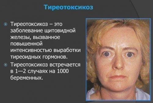 Тироетоксикоз вызывает ацетоновый галитоз