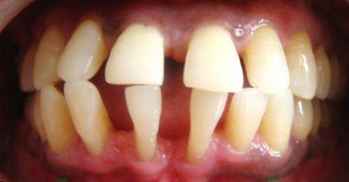 Укрепление зубов при пародонтозе