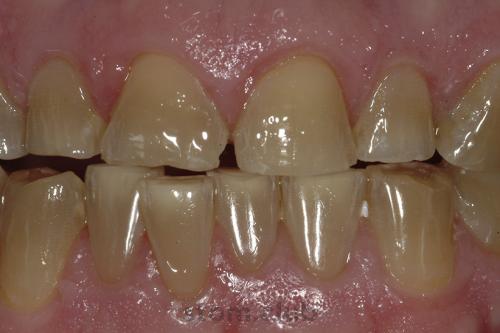 Утончение эмали зубов