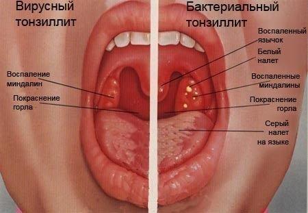 Виды тонзилита в горле