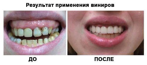 Результат установки виниров на передние зубы