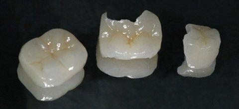 Готовые керамические вкладки для коренных зубов