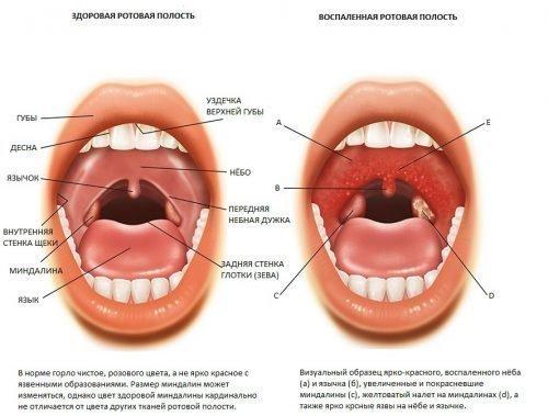 Воспаление горла и запах
