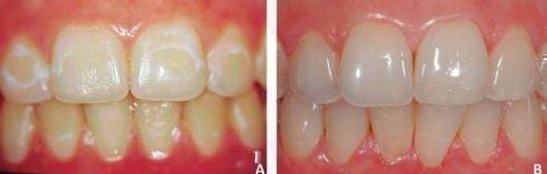 Восстановление эмали зубов - до и после