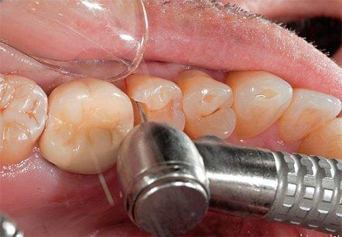 Восстановление пломбы - очистка зуба