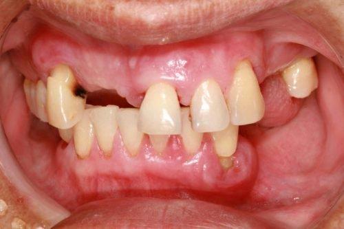 Выпадение зубов при пародонтозе