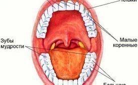 Стоит ли лечить от кариеса и пломбировать зубы мудрости