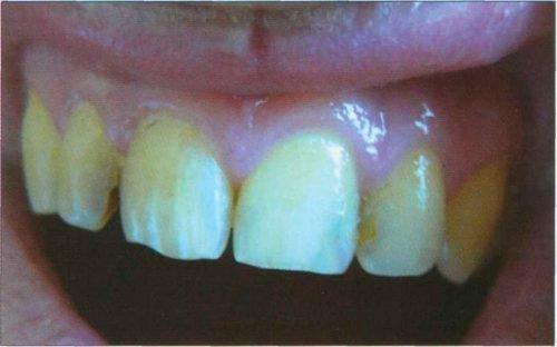 Зубы курильщика с истонченной эмалью