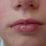 Симптомы или как проявляется аллергия на пломбировочный материал