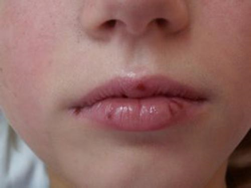 Аллергия на губах после лечения зуба