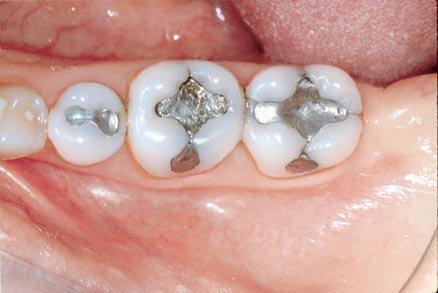 Амальгамные пломбы в зубах