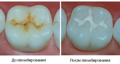 Цементная пломба в зубе - до и после