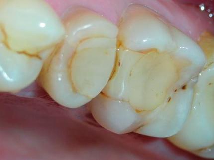 Цементные пломбы в зубах