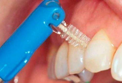 Чистка зубных коронок
