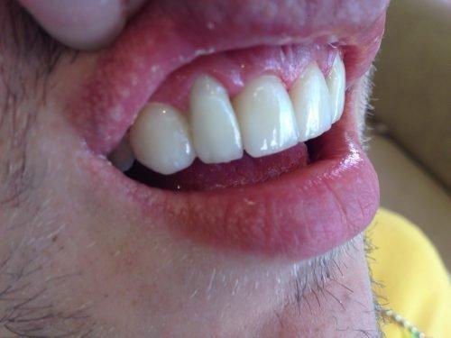 Фотополимерная пломба на передних зубах