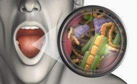 Диагностика и методы лечения халитоза