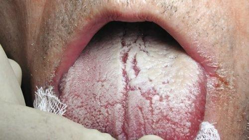 Грибковая инфекция вызывает гнилостный запах изо рта