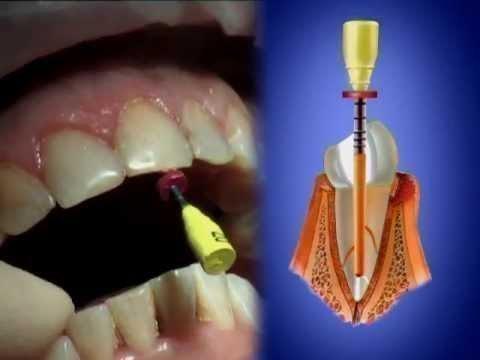 Гуттаперчевый штифт в корневом канале зубе
