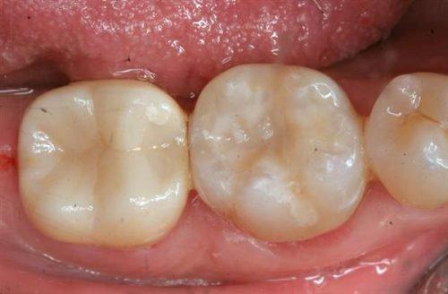 Химическая пломба в зубах