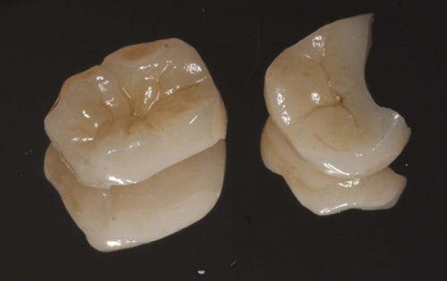 Керамические пломбы (вкладки) для зубов