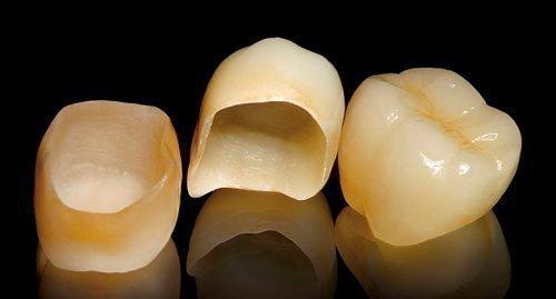 Коронки на коренные зубы