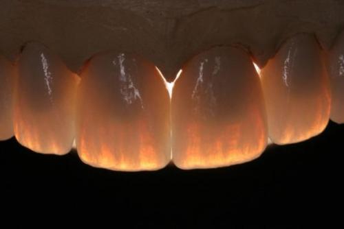 Микротрещины в эмали зуба