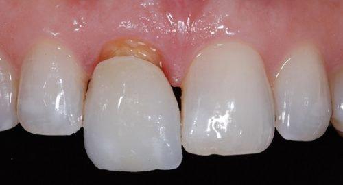 Нарушение фиксации коронки зуба