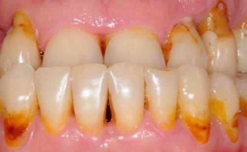 Нечищенные зубы - причина галитоза