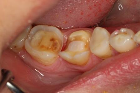Некачественная пломба в зубе