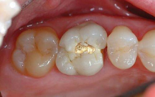 Неправильная форма пломбы в зубе