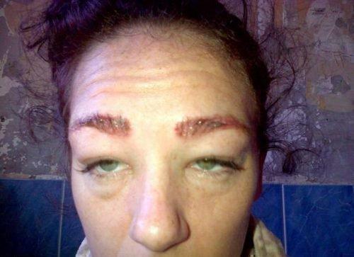 Отек лица после пломбирования