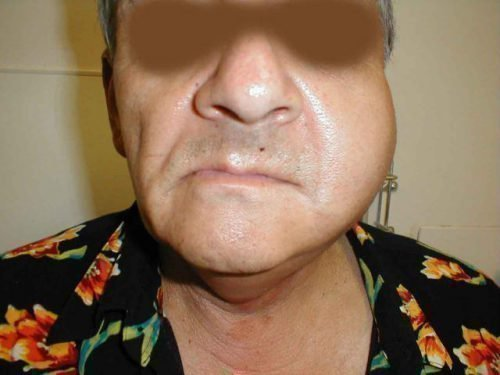 Инфекционный отек щеки после удаления нерва