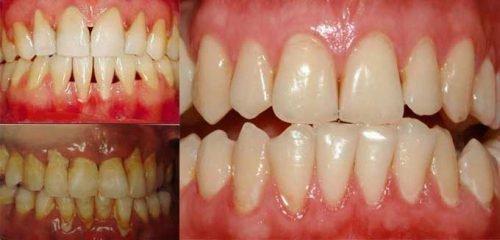 До и после лечения пародонтоза - три стадии