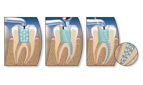 Перепломбировка канала зуба